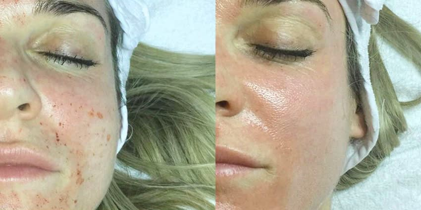 LED Therapy Mask Before & After